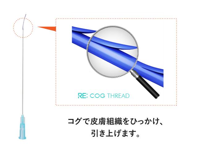 N-COGの糸の構造図