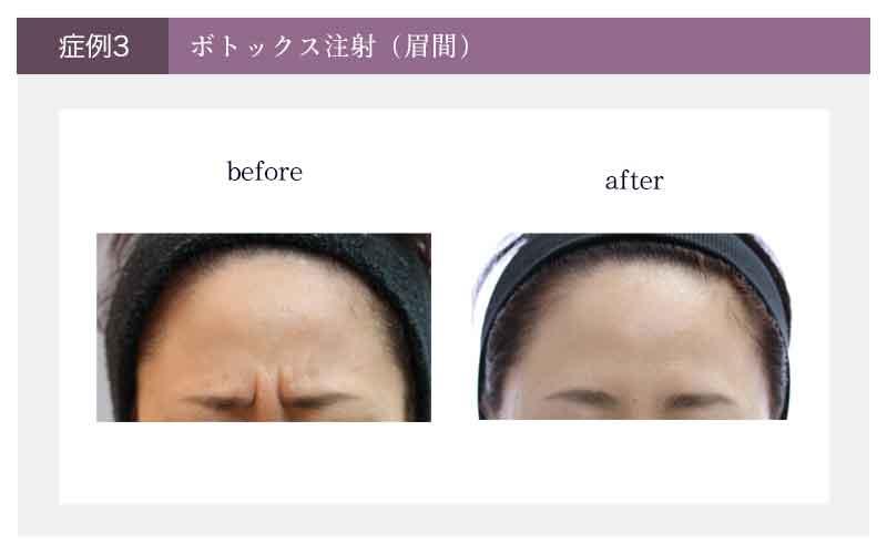 眉間のボトックス注射治療の治療前と治療後の様子