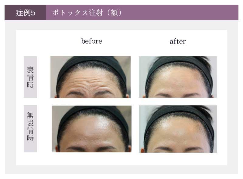 ボトックス注射(額)治療の治療前と治療後の様子