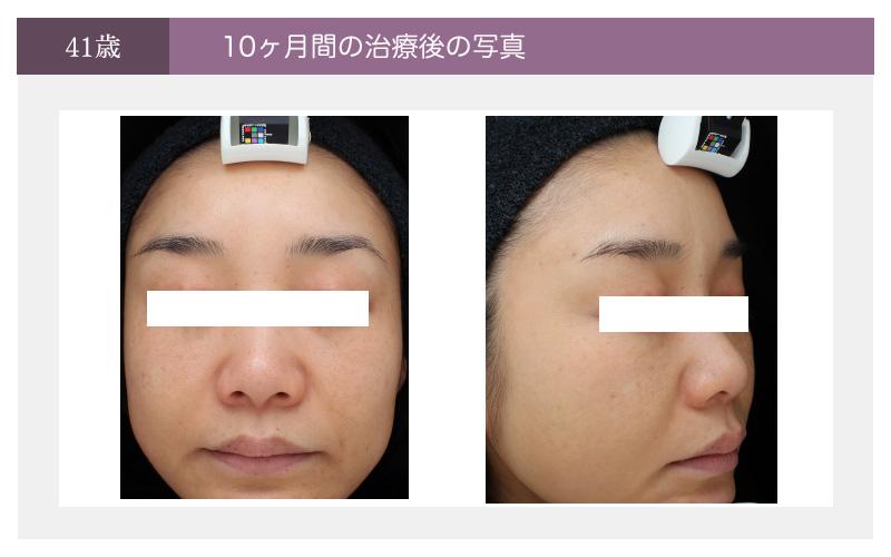 10ヶ月間の治療後(41歳)の時の症例写真