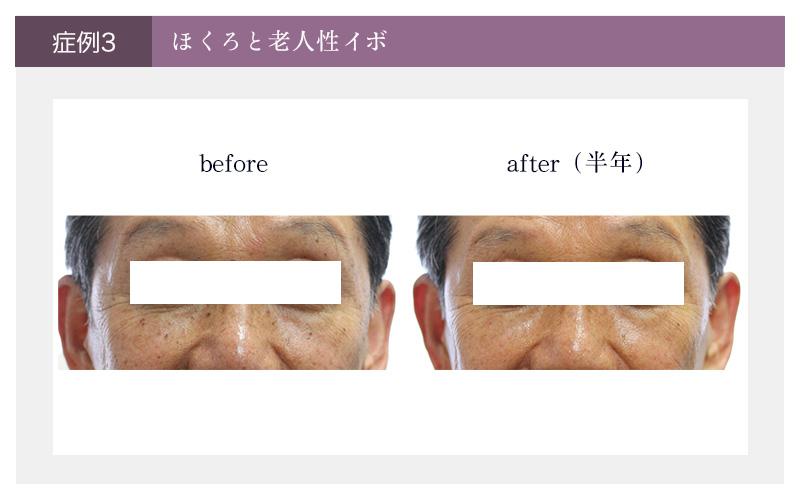 ほくろと老人性イボの症例 治療前と治療後半年の写真