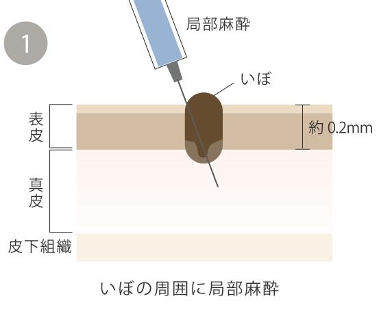 イボの周囲に麻酔を注射