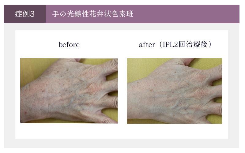 IPL手の症例(治療前と2回治療後の手)