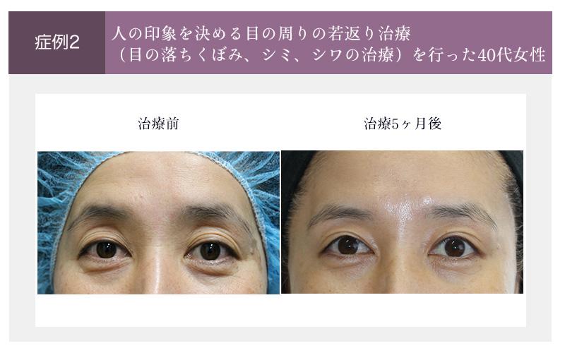 目元の若返り治療の症例(治療前と治療5ヶ月後)