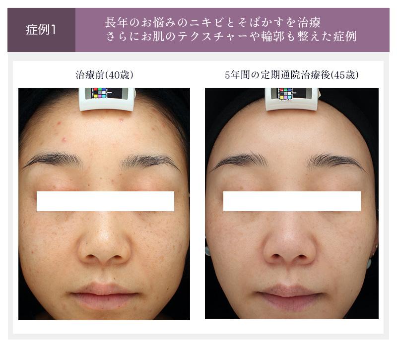 40代女性が5年間定期通院した症例(治療前と5年間の定期通院後)