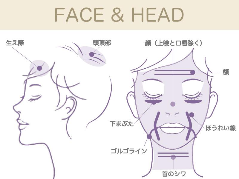 顔と頭の施術部位の図(頭の施術部位は頭頂部、前頭、顔は上瞼と唇以外、ほうれい線、ゴルゴラインなど)