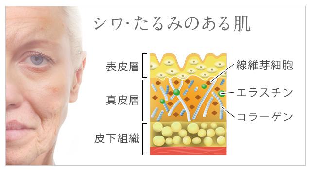 しわ・たるみのある顔と肌のイメージ