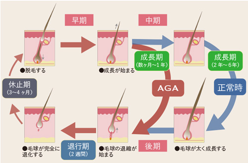 AGAサイクルを示した図