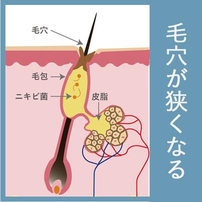 毛穴が狭くなった状態を表す皮膚のイメージ図