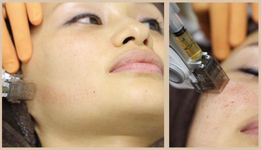 女性の顔に複数点注射をする様子