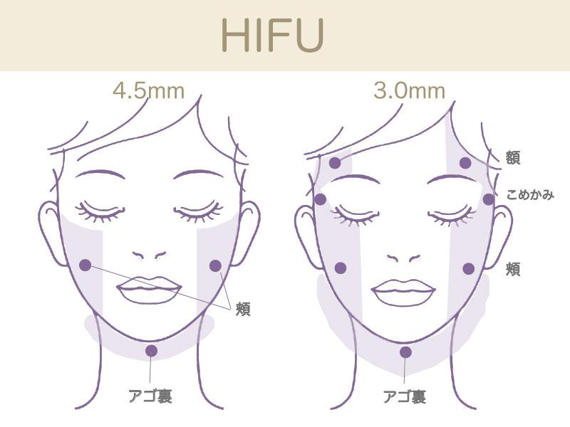 ウルトラセル(HIFU)施術可能部位