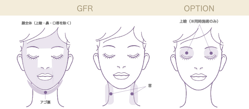 ウルトラセル( GFR)施術可能部位