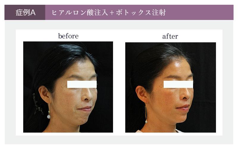 ヒアルロン酸注入組み合わせ治療_横顔症例