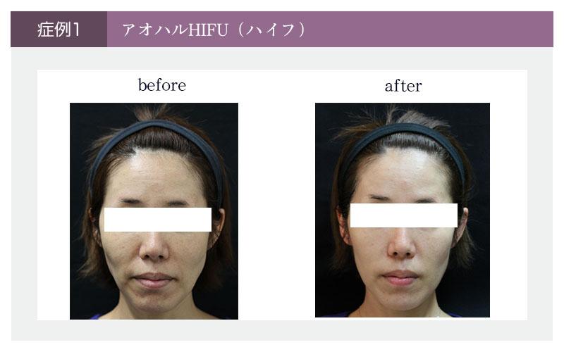 アオハルHIFU(ハイフ)顔の症例写真