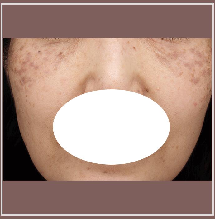 ADMと老人性色素斑の症例写真
