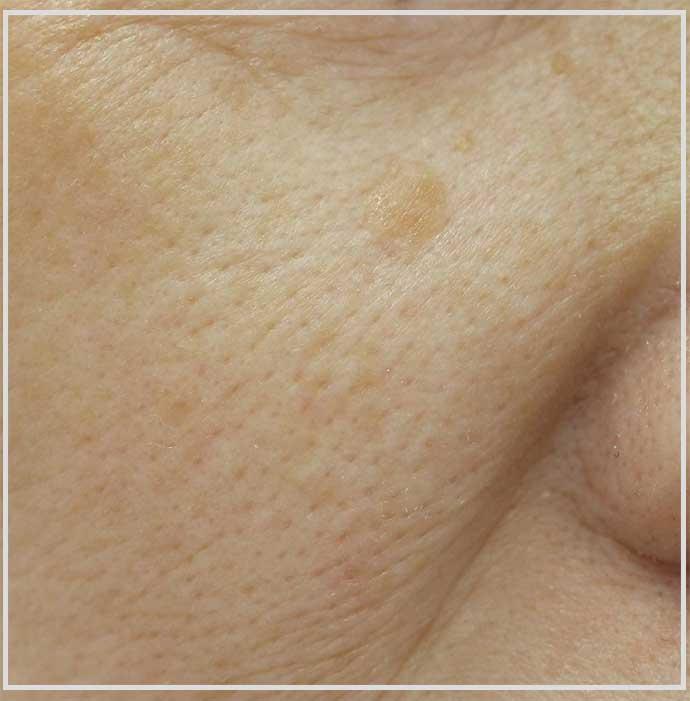頬にできた脂漏性角化症の症例