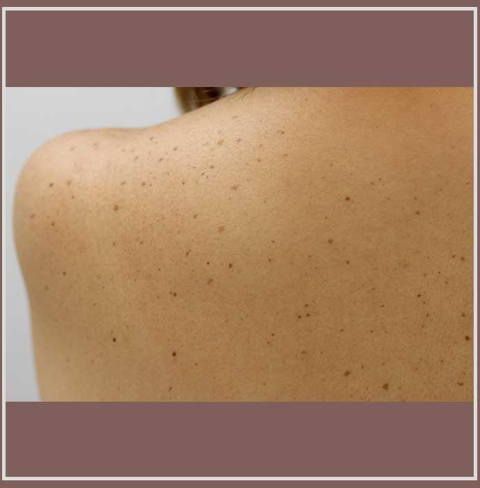 光線性花弁状色素斑の症例写真