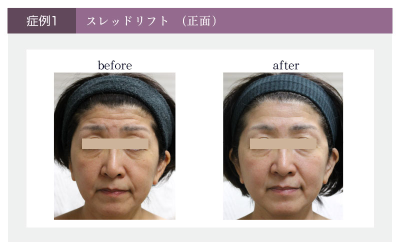 スレッドリフトの顔正面の症例写真